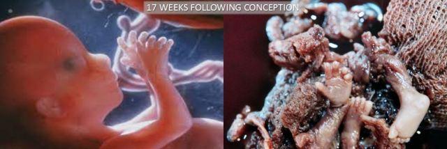 17 Week Abortion Comparison