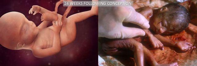 24 Week Abortion Comparison