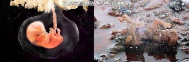 7 Week Abortion Comparison