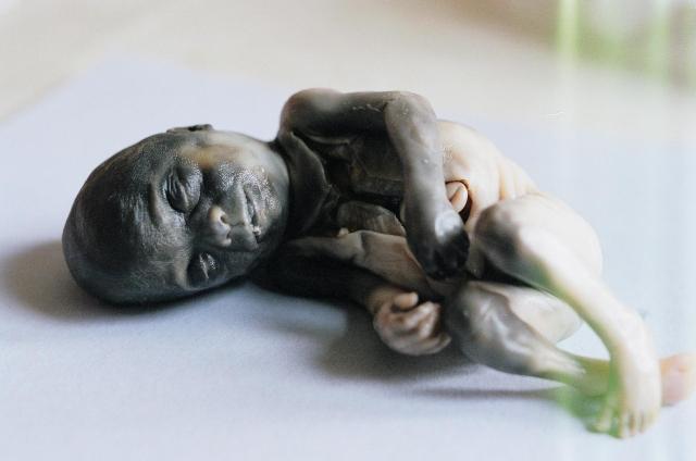 24 week abortion