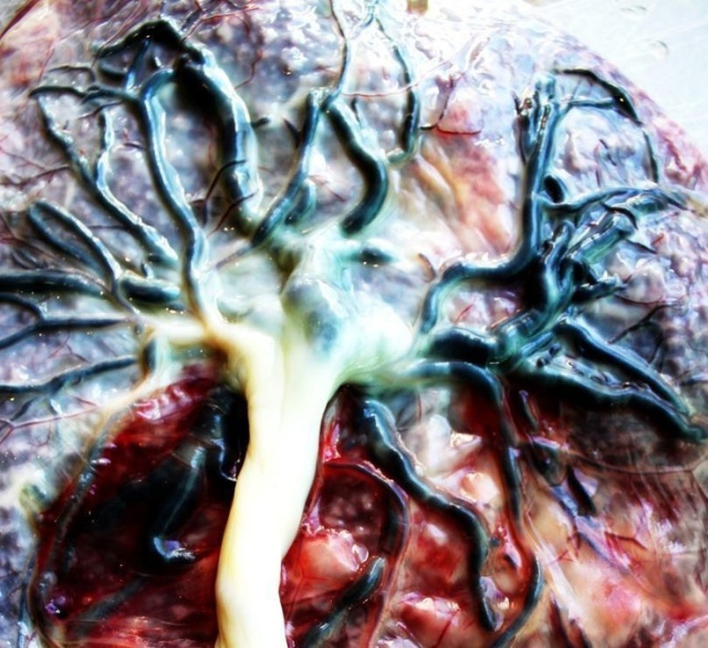 the placenta is the tree of life