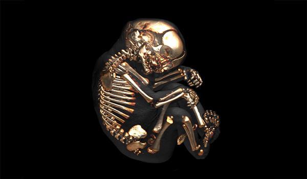 Fetal Anatomy